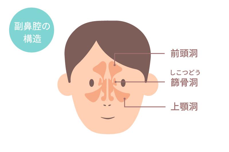 ちくのう症(副鼻腔炎)