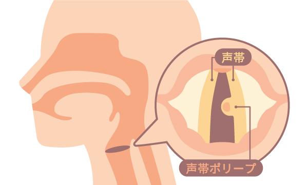 声帯ポリープ